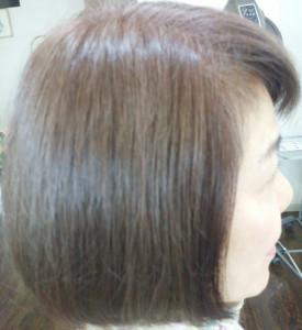 頭痛&脱毛1−2−1